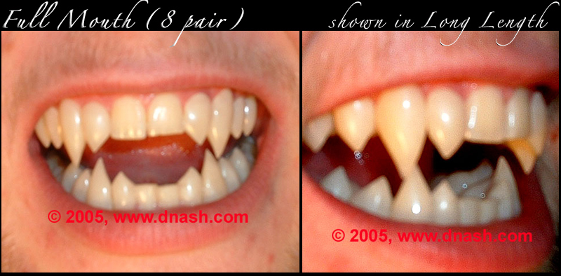 http://classic_teeth_by_dnash-full_mouth-A
