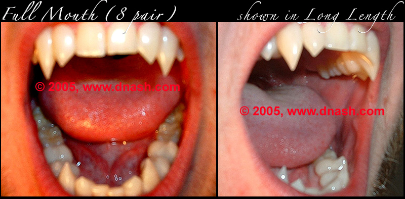 http://classic_teeth_by_dnash-full_mouth-B