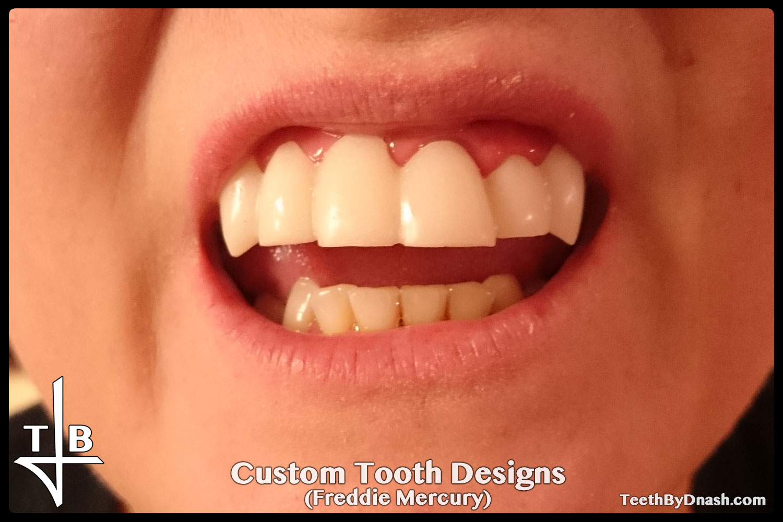 http://custom_designs-freddie_mercury-teeth_by_dnash-02