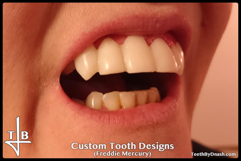 http://custom_designs-freddie_mercury-teeth_by_dnash-03