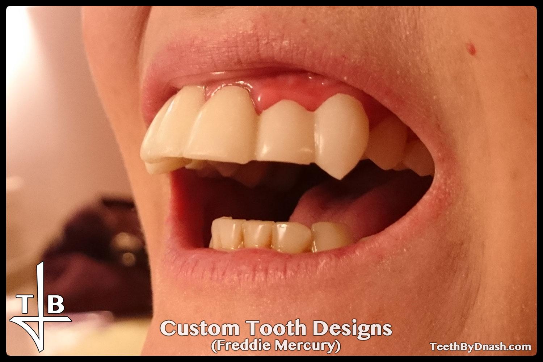 http://custom_designs-freddie_mercury-teeth_by_dnash-04
