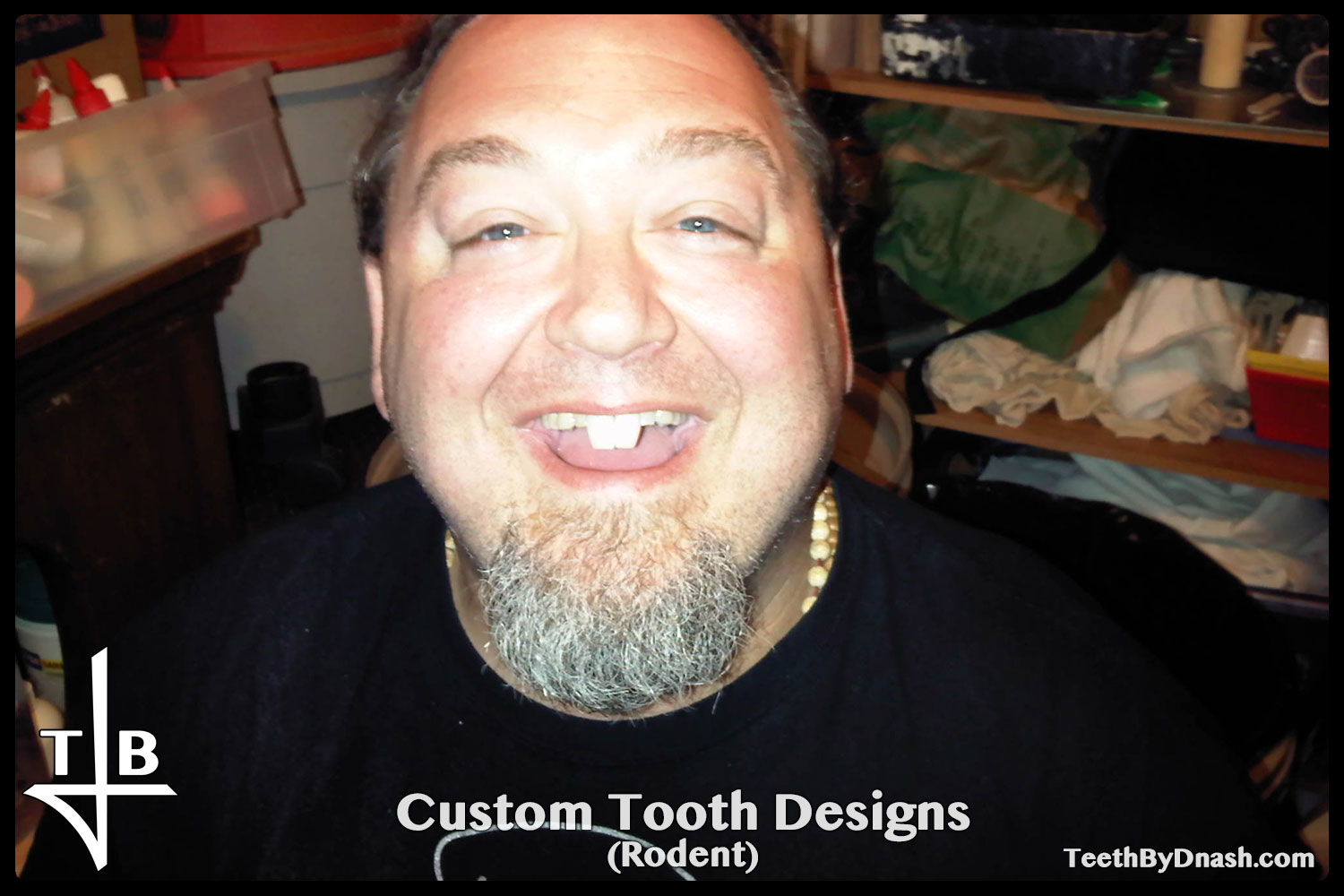 http://custom_designs-rodent-teeth_by_dnash-01