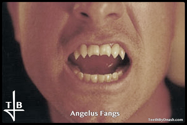 http://angelus-custom_fangs-teeth_by_dnash-01