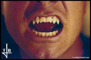 angelus-custom_fangs-teeth_by_dnash-featured