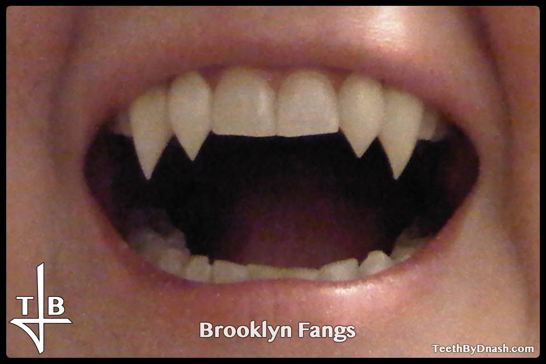 http://Teeth%20By%20Dnash%20Custom%20Fang%20Style%20-%20Brooklyn