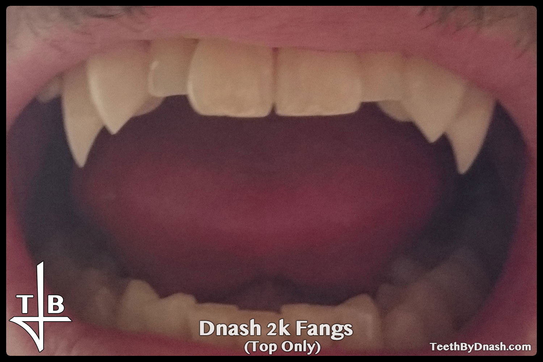 http://dnash_2k-custom_fangs-top_only-01