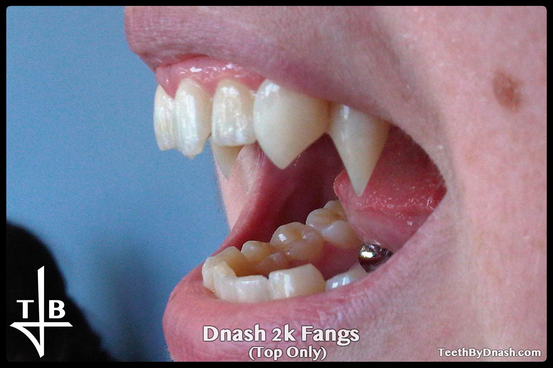 http://dnash_2k-custom_fangs-top_only-06