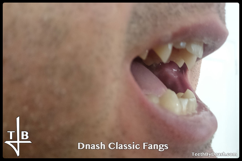 http://dnash_classic-custom_fangs-03