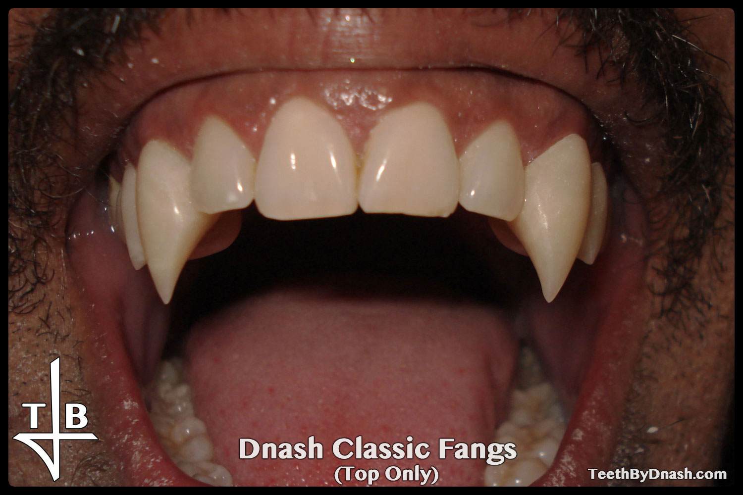 http://dnash_classic-custom_fangs-top_only-02