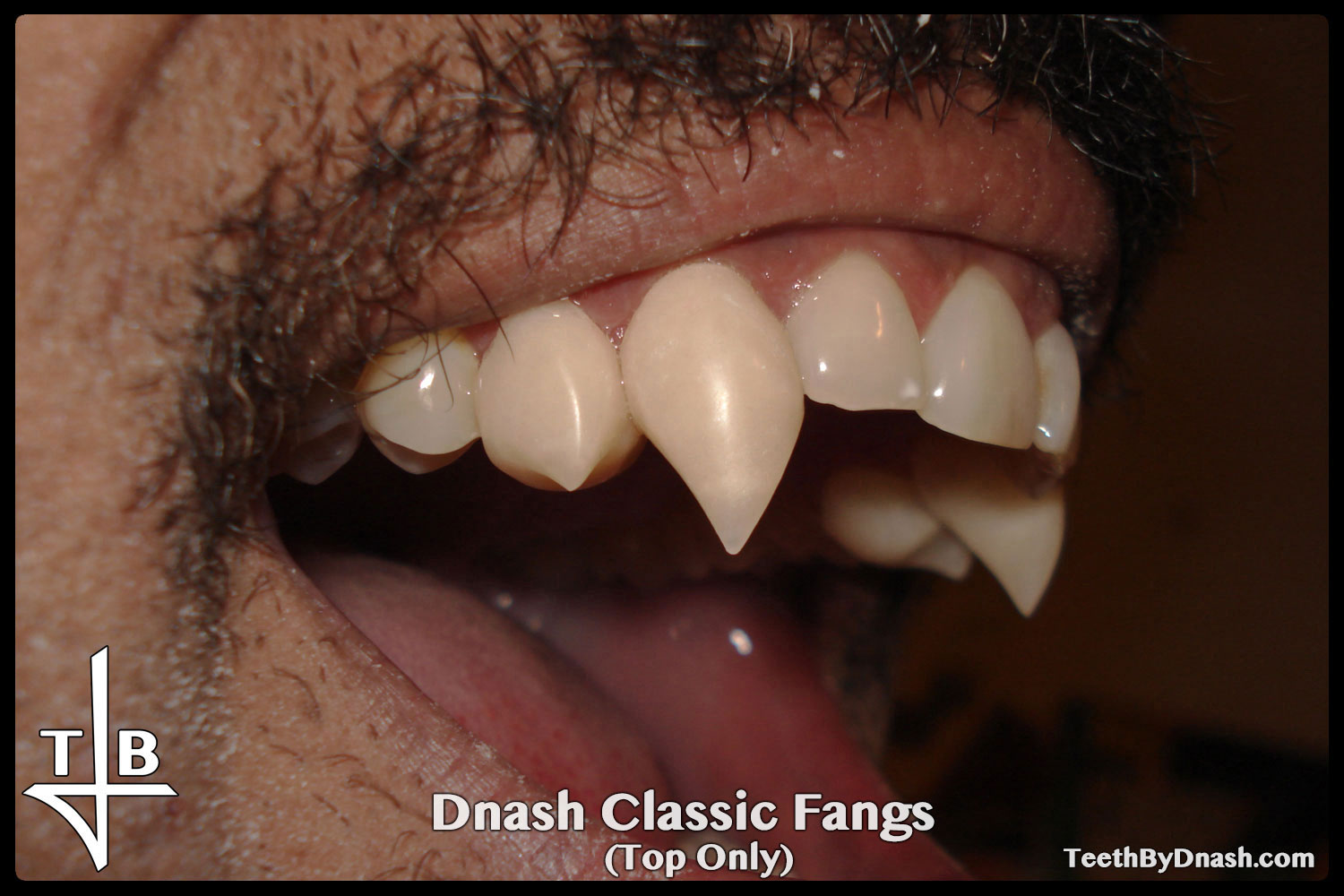 http://dnash_classic-custom_fangs-top_only-03