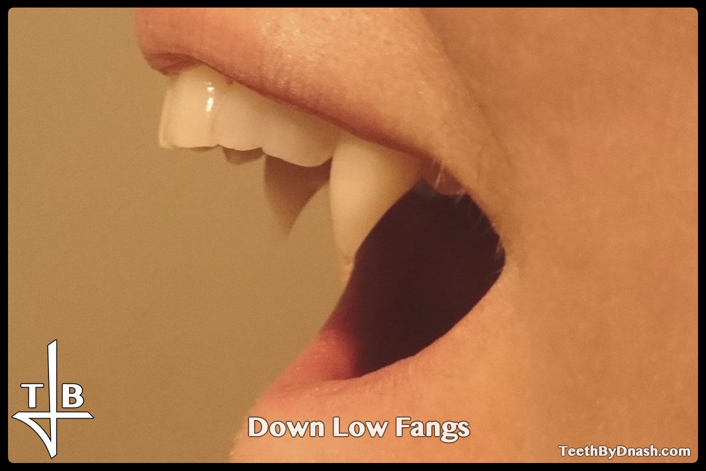 http://down_low-custom_fangs-teeth_by_dnash-03