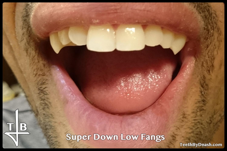 http://super_down_low-custom_fangs-teeth_by_dnash-03