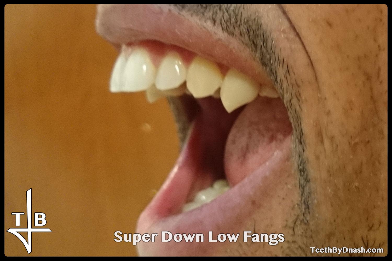 http://super_down_low-custom_fangs-teeth_by_dnash-04