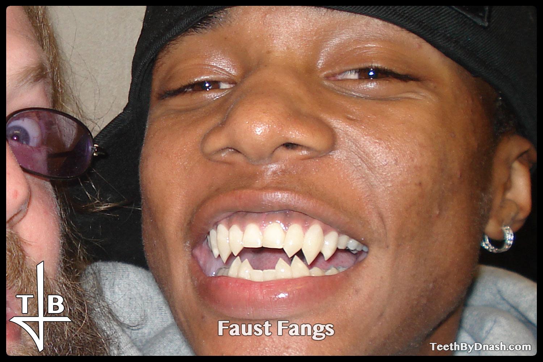 http://faust-custom_fangs-teeth_by_dnash-01