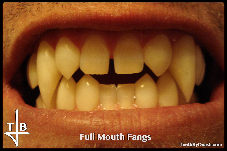 http://full_mouth-custom_fangs-teeth_by_dnash-03