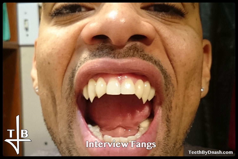 http://interview-custom_fangs-teeth_by_dnash-00