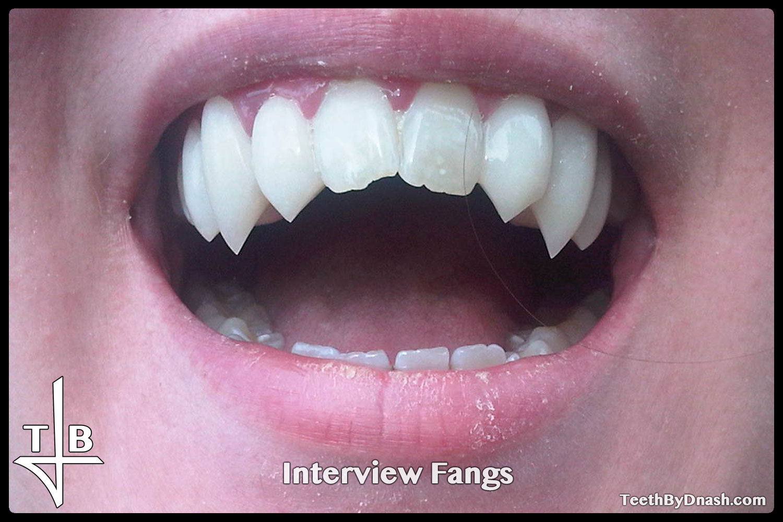 http://interview-custom_fangs-teeth_by_dnash-03