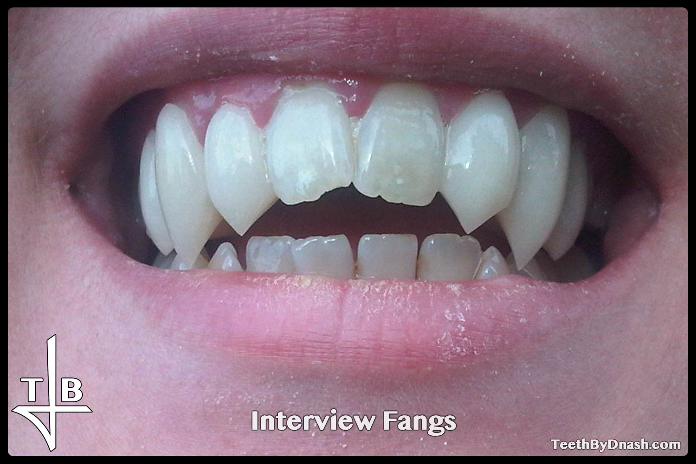 http://interview-custom_fangs-teeth_by_dnash-04