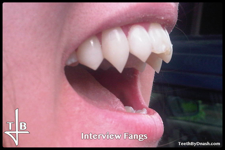 http://interview-custom_fangs-teeth_by_dnash-05