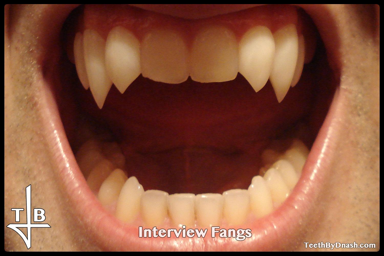 http://interview-custom_fangs-teeth_by_dnash-06
