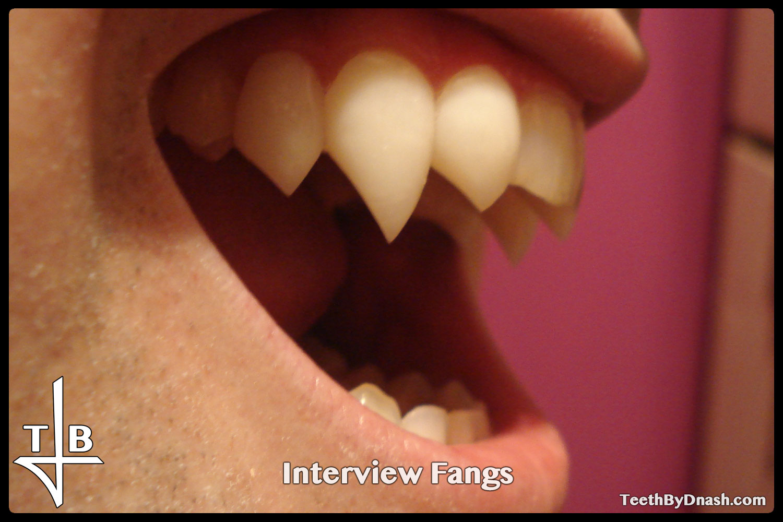 http://interview-custom_fangs-teeth_by_dnash-07