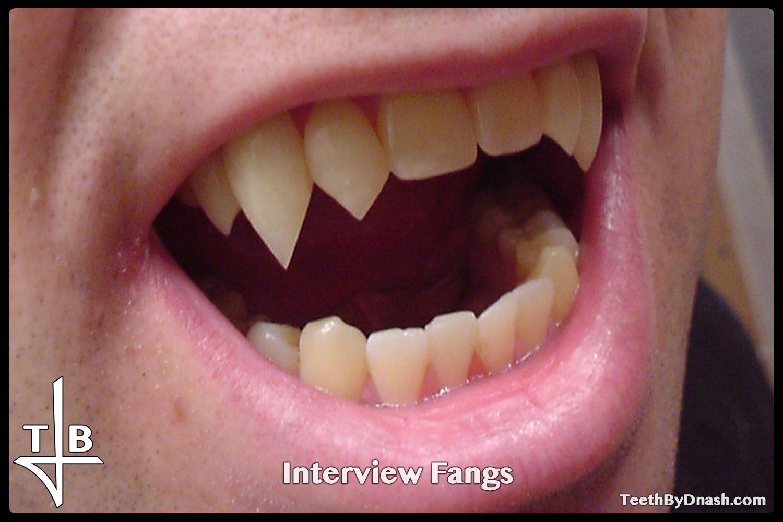 http://interview-custom_fangs-teeth_by_dnash-08
