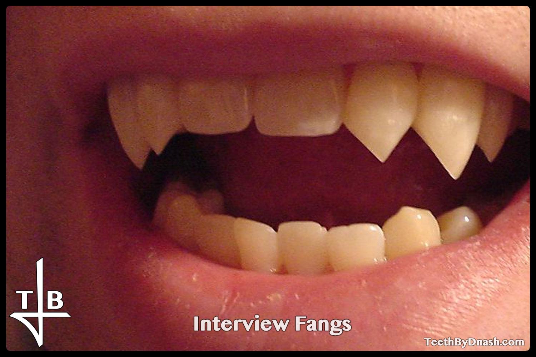 http://interview-custom_fangs-teeth_by_dnash-09