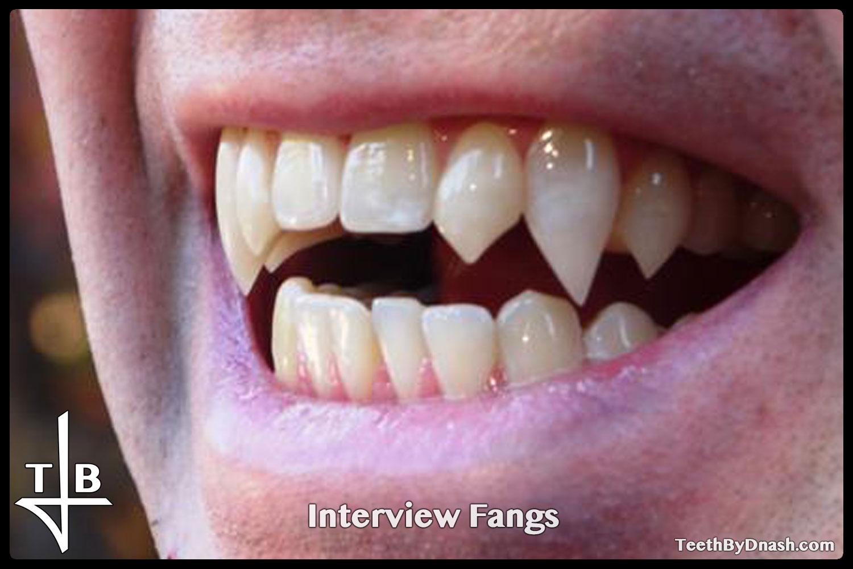 http://interview-custom_fangs-teeth_by_dnash-10