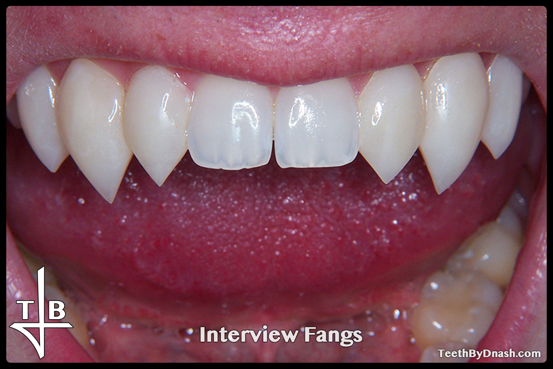 http://interview-custom_fangs-teeth_by_dnash-11