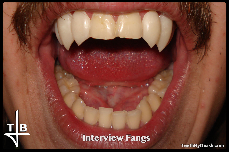 http://interview-custom_fangs-teeth_by_dnash-13