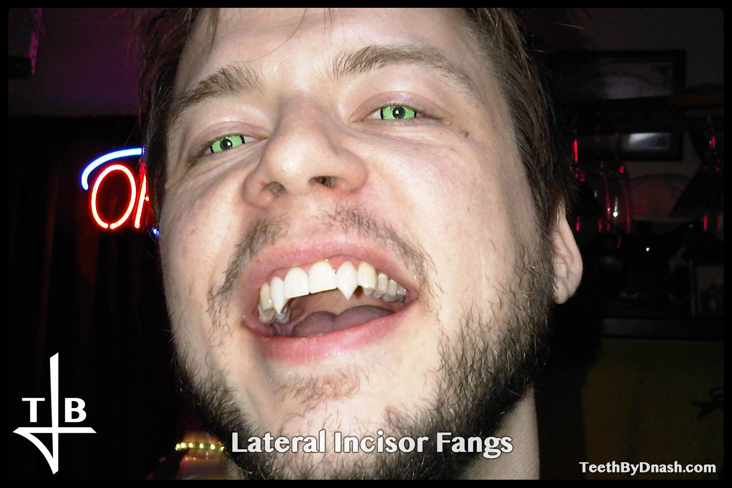 http://lateral_incisor-custom_fangs-teeth_by_dnash-07