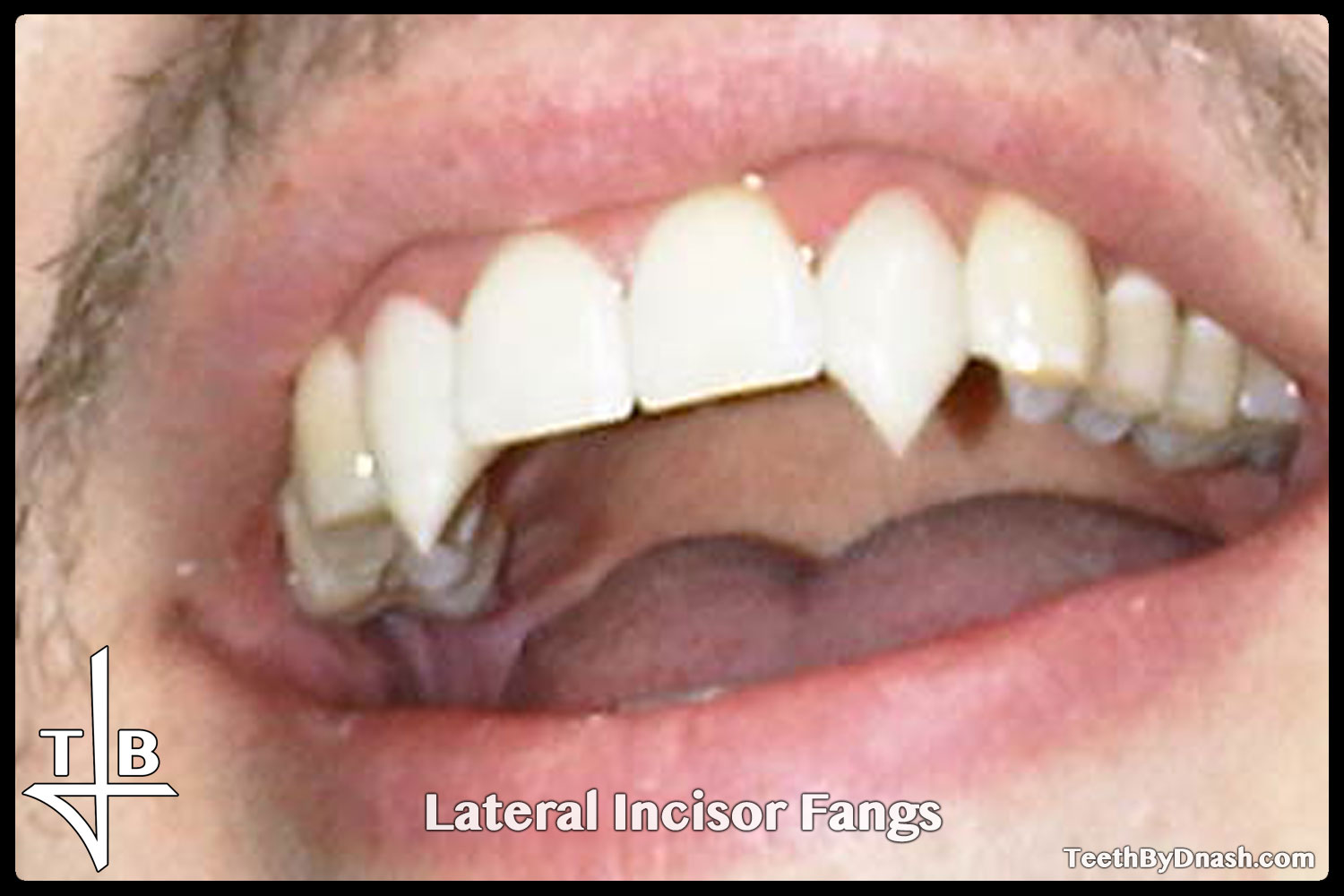 http://lateral_incisor-custom_fangs-teeth_by_dnash-08