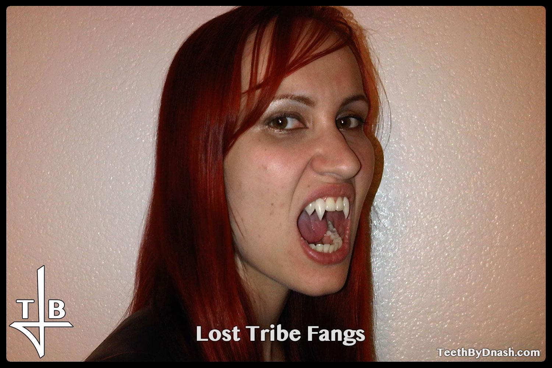 http://lost_tribe-custom_fangs-teeth_by_dnash-01