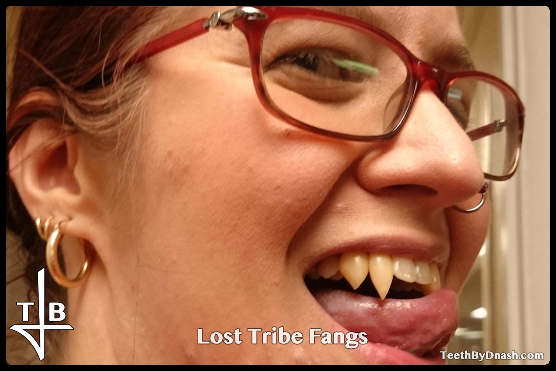 http://lost_tribe-custom_fangs-teeth_by_dnash-03
