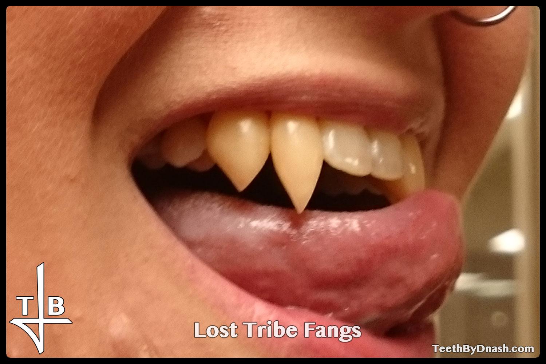 http://lost_tribe-custom_fangs-teeth_by_dnash-04