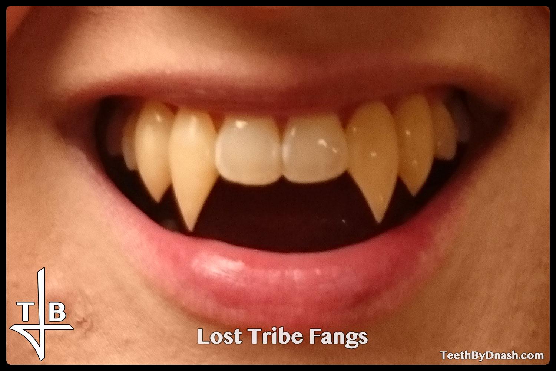 http://lost_tribe-custom_fangs-teeth_by_dnash-05