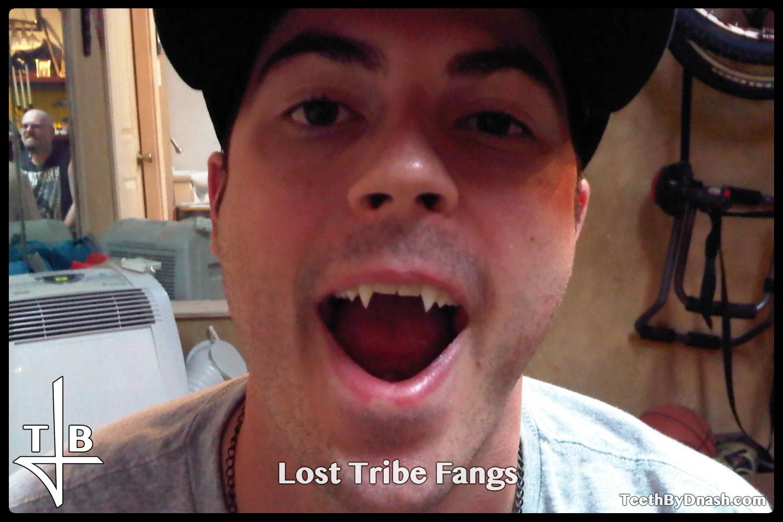 http://lost_tribe-custom_fangs-teeth_by_dnash-06