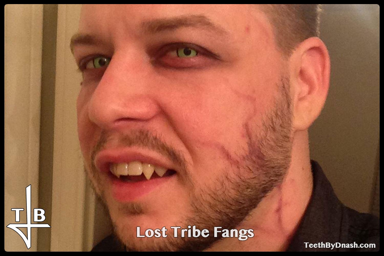 http://lost_tribe-custom_fangs-teeth_by_dnash-07