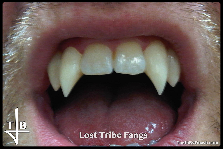 http://lost_tribe-custom_fangs-teeth_by_dnash-08