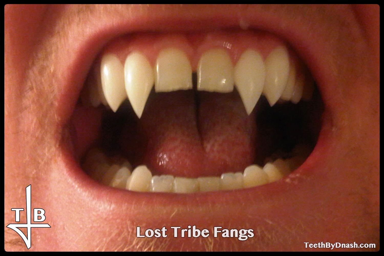 http://lost_tribe-custom_fangs-teeth_by_dnash-11