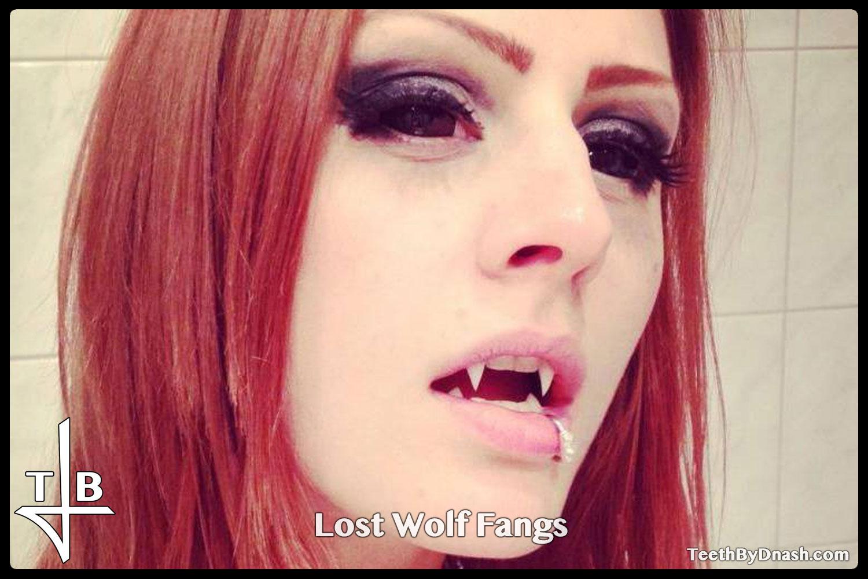 http://lost_wolf-custom_fangs-teeth_by_dnash-01