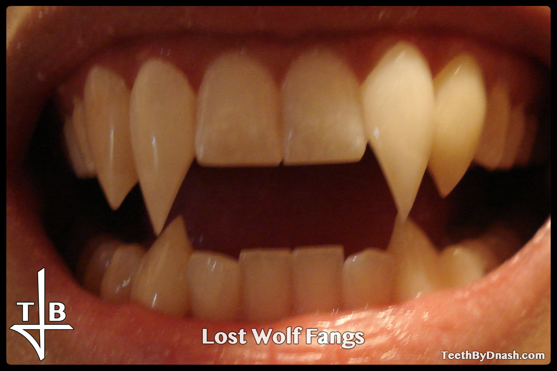 http://lost_wolf-custom_fangs-teeth_by_dnash-02