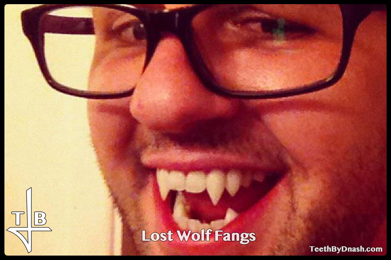 http://lost_wolf-custom_fangs-teeth_by_dnash-04