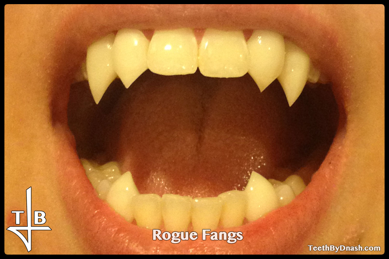 http://rogue-custom_fangs-teeth_by_dnash-05