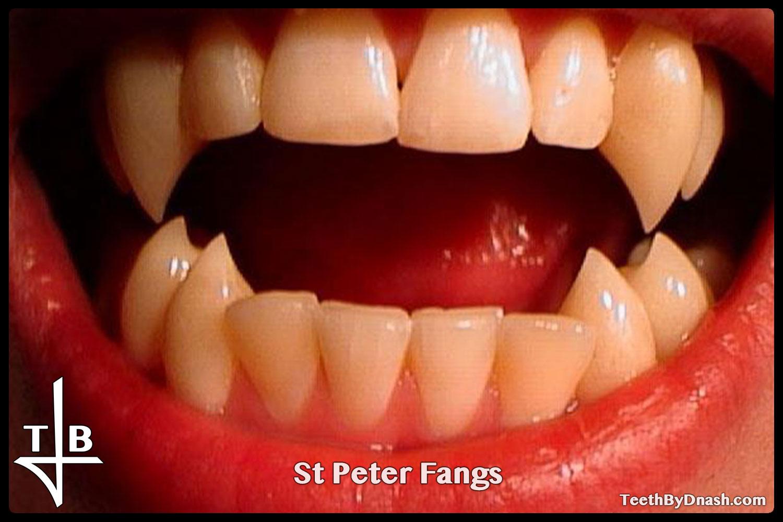 http://saint_peter-custom_fangs-teeth_by_dnash-02