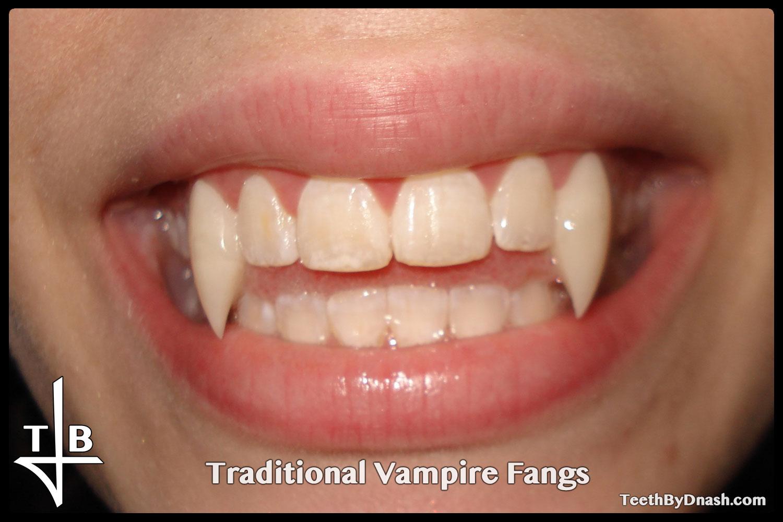 http://traditional_vampire-custom_fangs-teeth_by_dnash-05