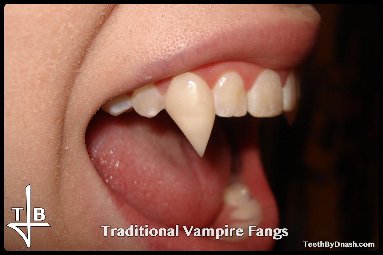 http://traditional_vampire-custom_fangs-teeth_by_dnash-06