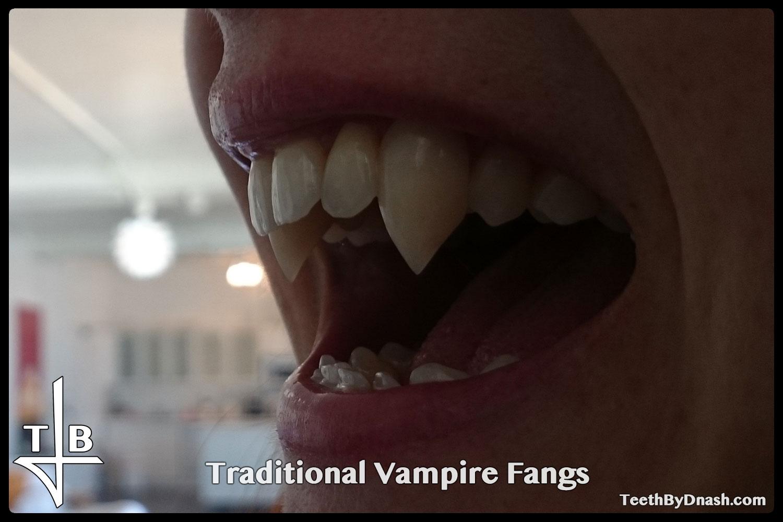 http://traditional_vampire-custom_fangs-teeth_by_dnash-09