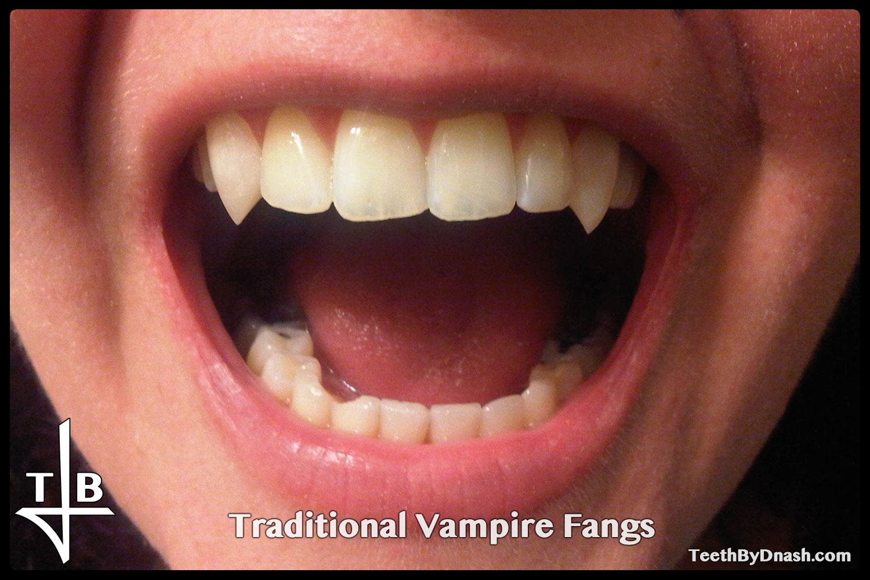 http://traditional_vampire-custom_fangs-teeth_by_dnash-10