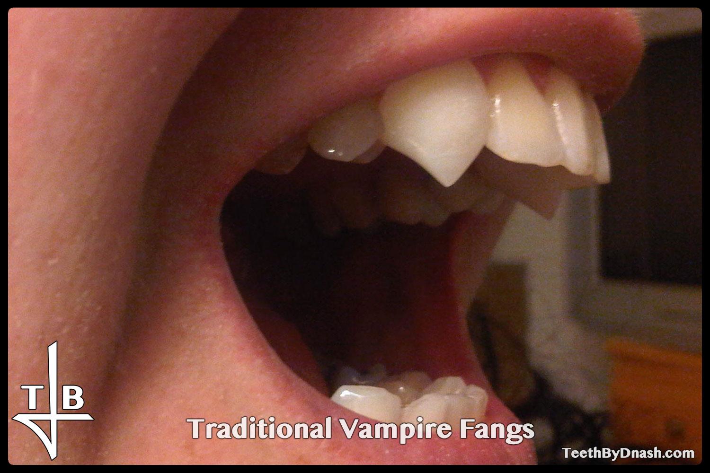 http://traditional_vampire-custom_fangs-teeth_by_dnash-11